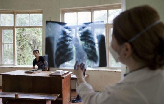 Lægen Irma Davitadze på arbejde på tuberkulosehospitalet i Batumi, Georgien. Vi har nu over 200 patienter i behandlingskure, hvor den nye medicin indgår. Målet er at finde bedre behandling af MRTB.